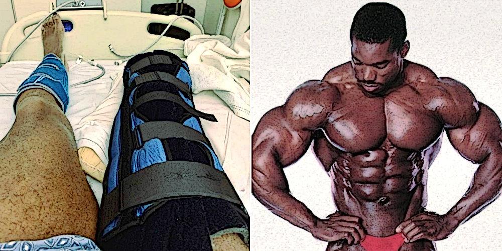 Флекс Віллер розповів про свій стан після ампутації ноги