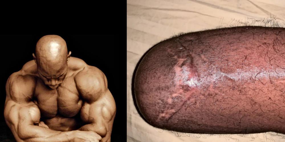 Флекс Віллер показав ногу після ампутації