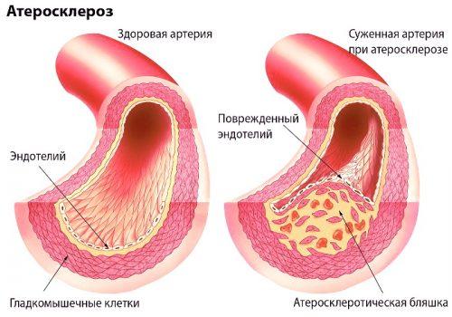 Як виглядає атеросклероз