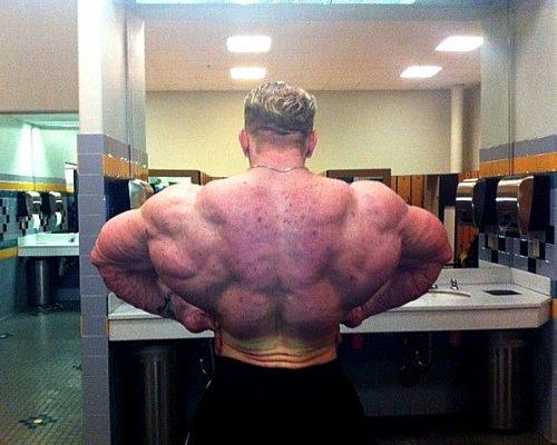 Акне на спині бодібілдера, викликане застосуванням анаболічних стероїдів