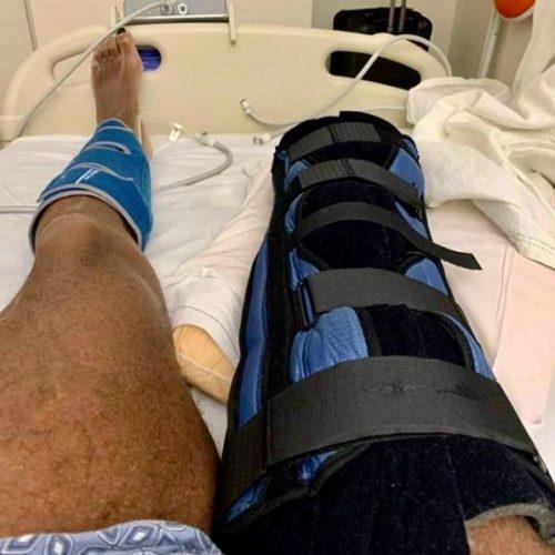 Ампутированная нога Флекса Уиллера