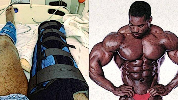 Флекс Уиллер рассказал о своем состоянии после ампутации ноги